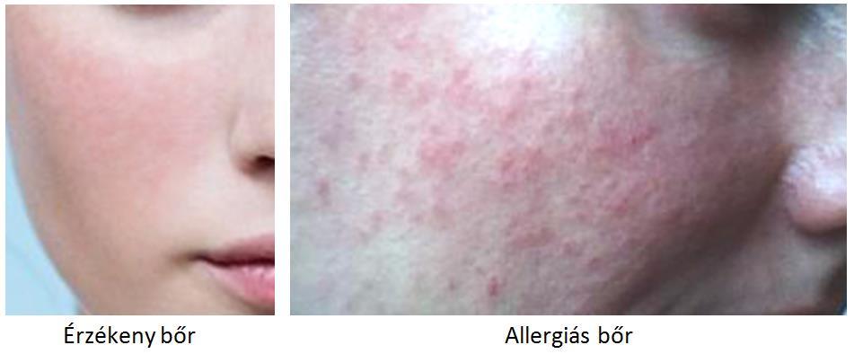 érzékeny és allergiás bőr
